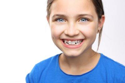 Раннее ортодонтическое лечение